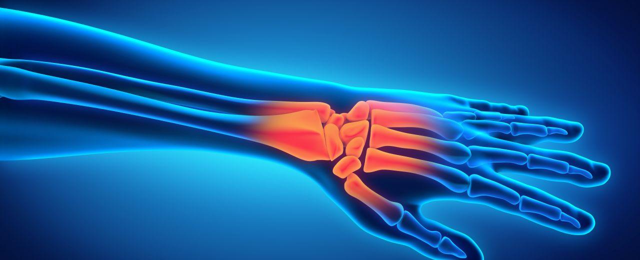Brechen ohne schmerzen handgelenk Arm brechen